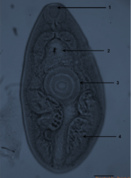 Detection of Paragonimus mexicanus (Trematoda) metacercariae in crabs from Oaxaca, Mexico