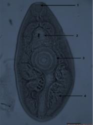 Detection of Paragonimus mexicanus (Trematoda) metacercariae in crabs from Oaxaca, Mexico